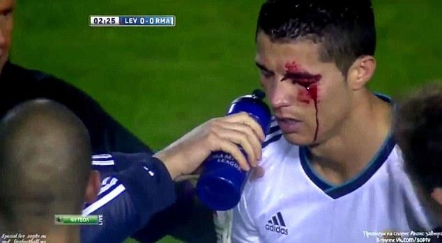 FIFA Incident1